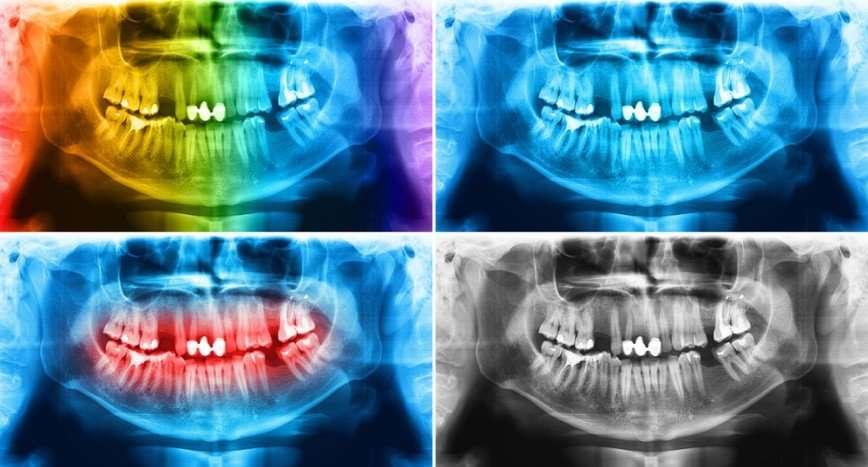 Топ-10 ужасов советской стоматологии